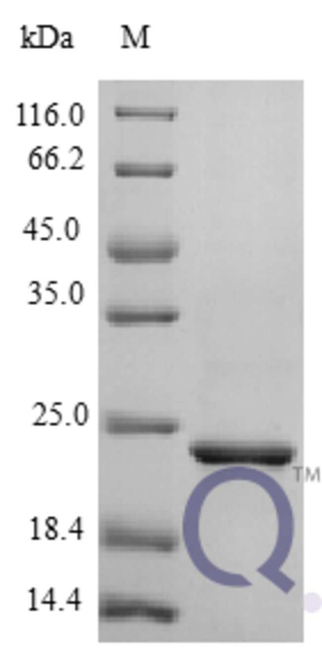 enQuireBio™Recombinant Human CNTF Protein 100μg enQuireBio™Recombinant Human CNTF Protein