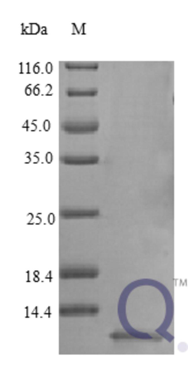 enQuireBio™Recombinant Human NRG1 Protein 10μg enQuireBio™Recombinant Human NRG1 Protein
