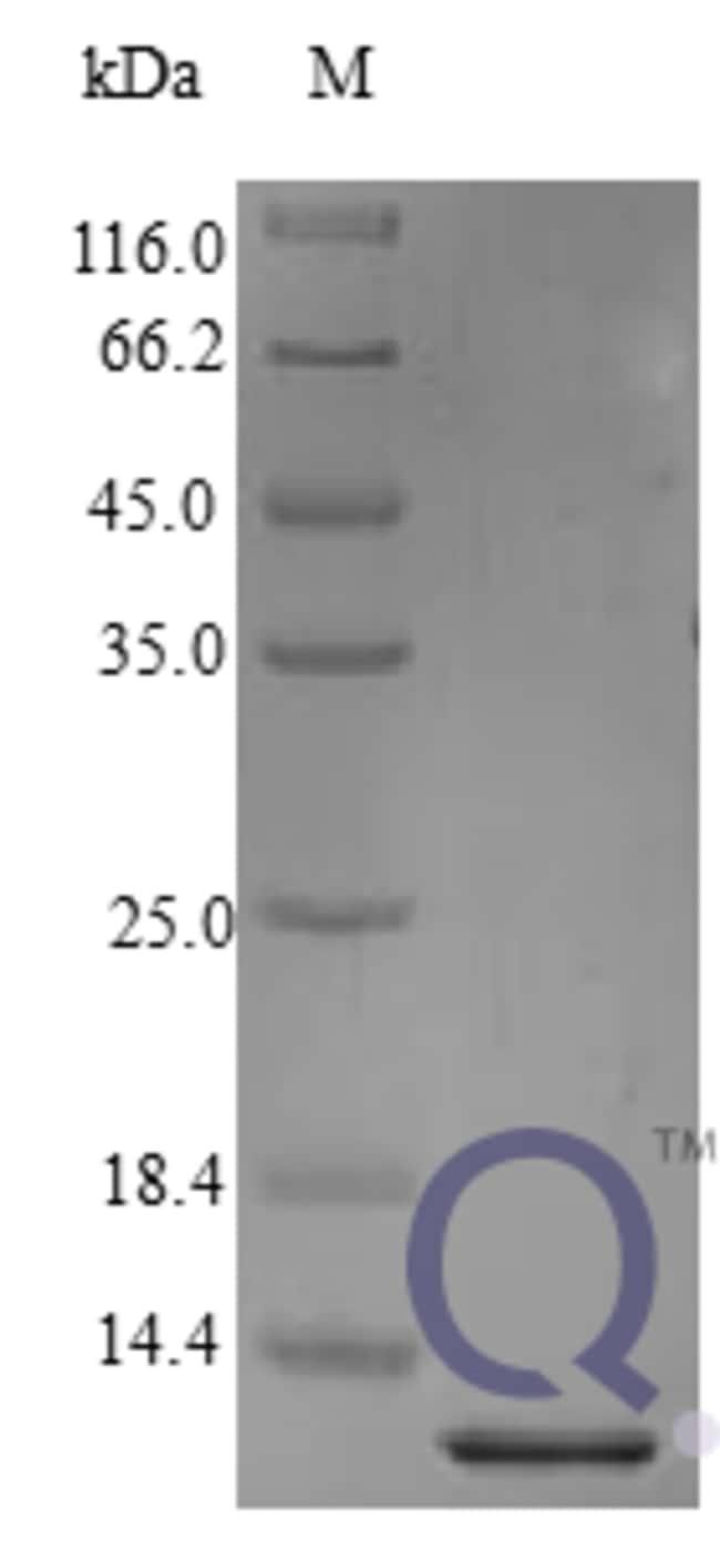enQuireBio™Recombinant Human BTC / Betacellulin Protein 250μg enQuireBio™Recombinant Human BTC / Betacellulin Protein
