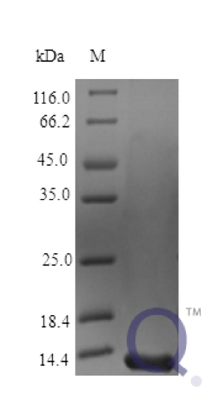 enQuireBio™Recombinant Human Midkine / MDK Protein 100μg enQuireBio™Recombinant Human Midkine / MDK Protein