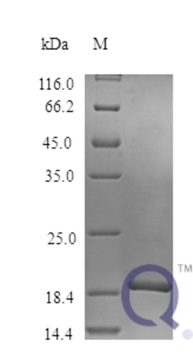enQuireBio™Recombinant Human Osteoprotegerin / TNFRSF11B Protein 50μg enQuireBio™Recombinant Human Osteoprotegerin / TNFRSF11B Protein