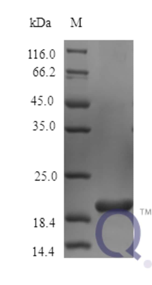 enQuireBio™Recombinant Mouse IL6 / Interleukin-6 Protein 250μg enQuireBio™Recombinant Mouse IL6 / Interleukin-6 Protein