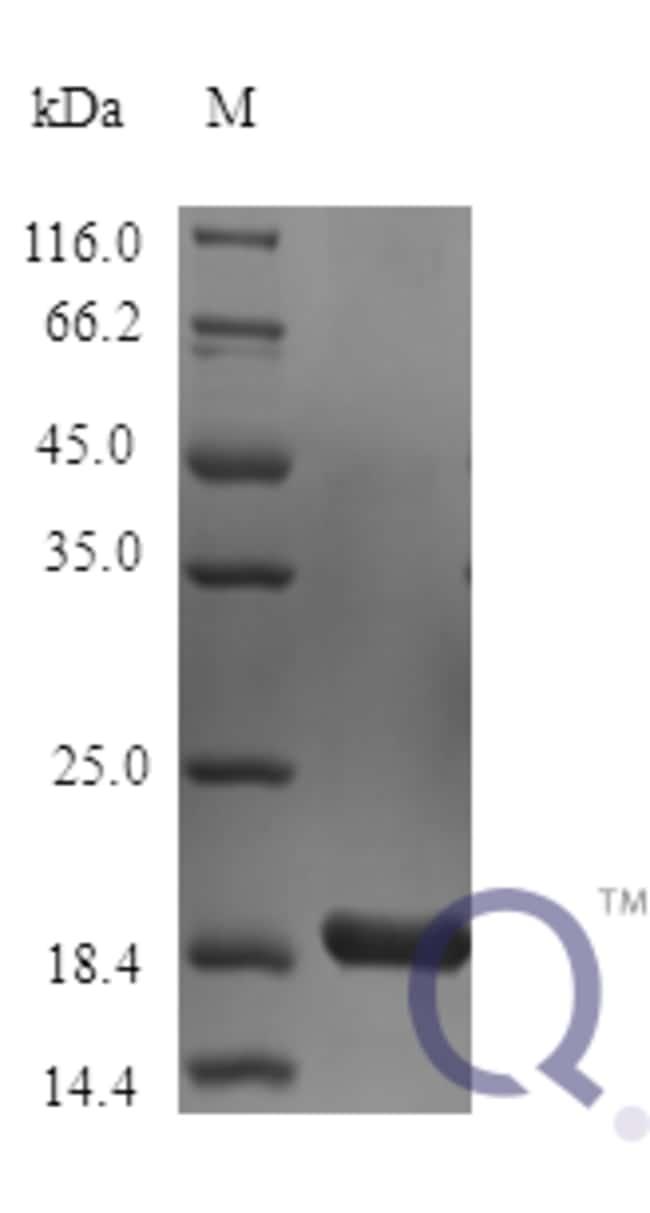 enQuireBio™Recombinant Mouse IL1F6 / IL36 Protein 100μg enQuireBio™Recombinant Mouse IL1F6 / IL36 Protein