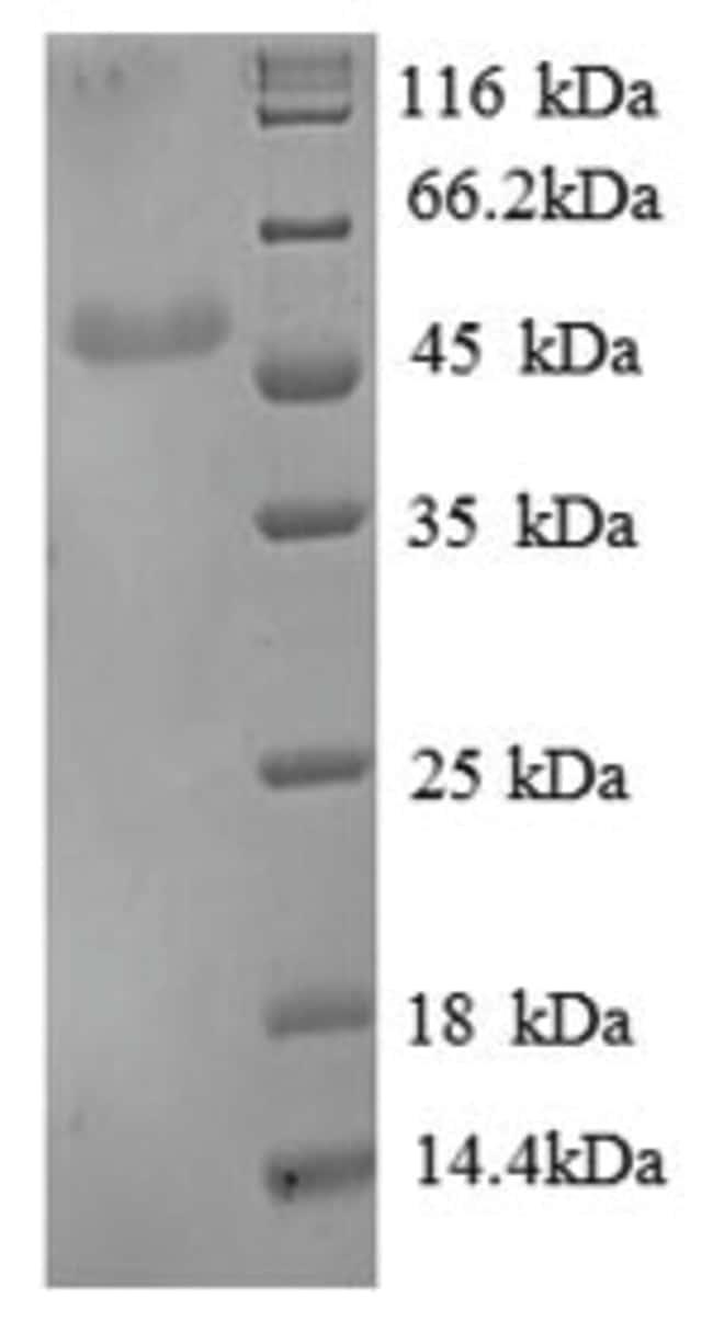 enQuireBio™Recombinant Human ENO3 / beta-enolase Protein 100μg enQuireBio™Recombinant Human ENO3 / beta-enolase Protein