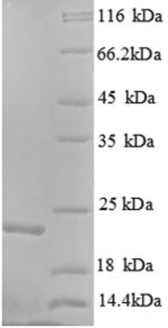enQuireBio™Recombinant Human K-Ras / K-Ras Protein 500μg enQuireBio™Recombinant Human K-Ras / K-Ras Protein