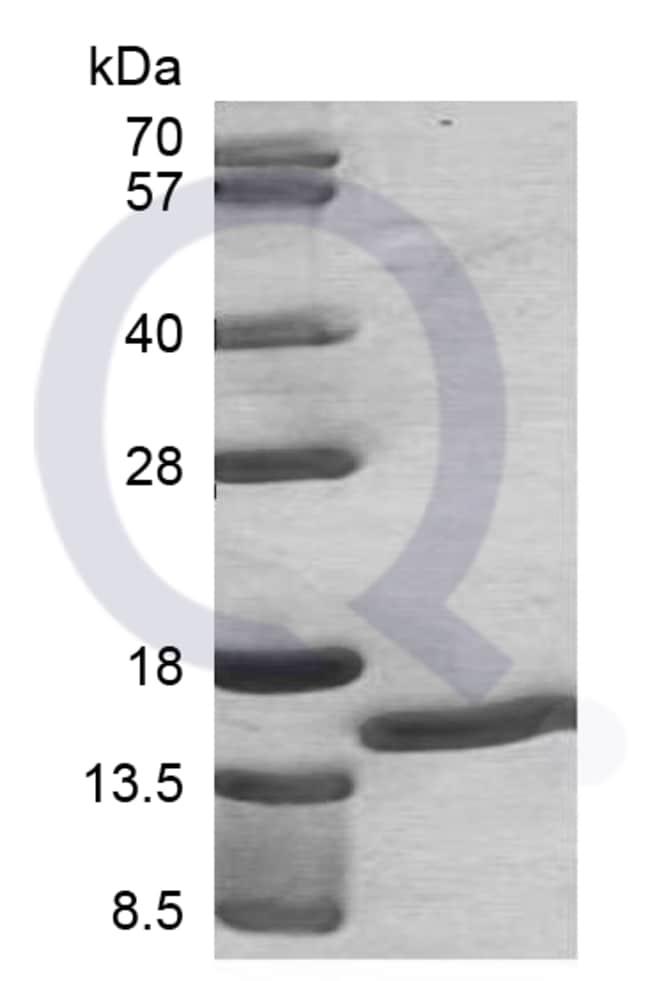enQuireBio™Recombinant Human S100A7 Protein 20μg enQuireBio™Recombinant Human S100A7 Protein