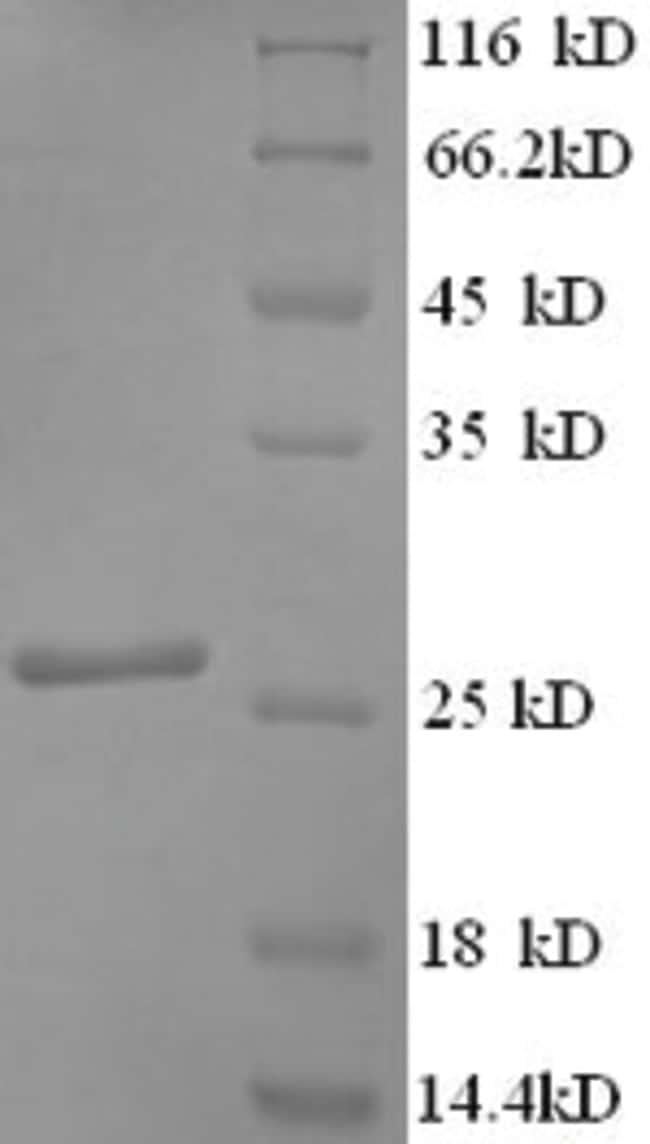 enQuireBio™Recombinant Human SNAP25 / SUP Protein 200μg enQuireBio™Recombinant Human SNAP25 / SUP Protein