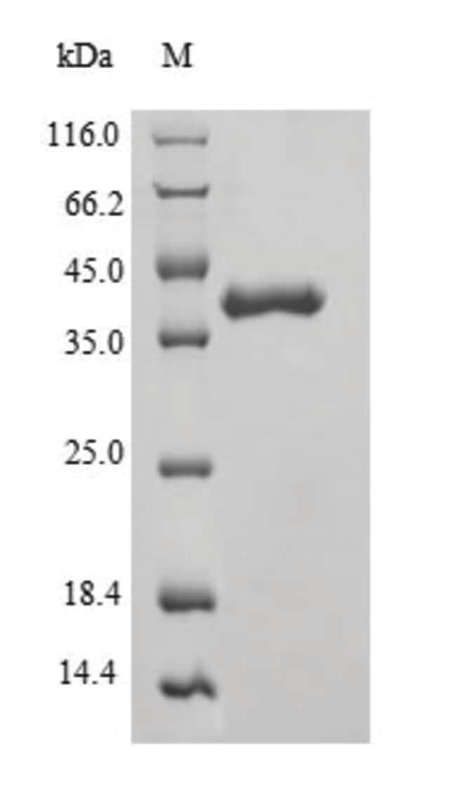 enQuireBio™Recombinant Mouse Phosphatidylcholine translocator ABCB4 Protein 100μg enQuireBio™Recombinant Mouse Phosphatidylcholine translocator ABCB4 Protein