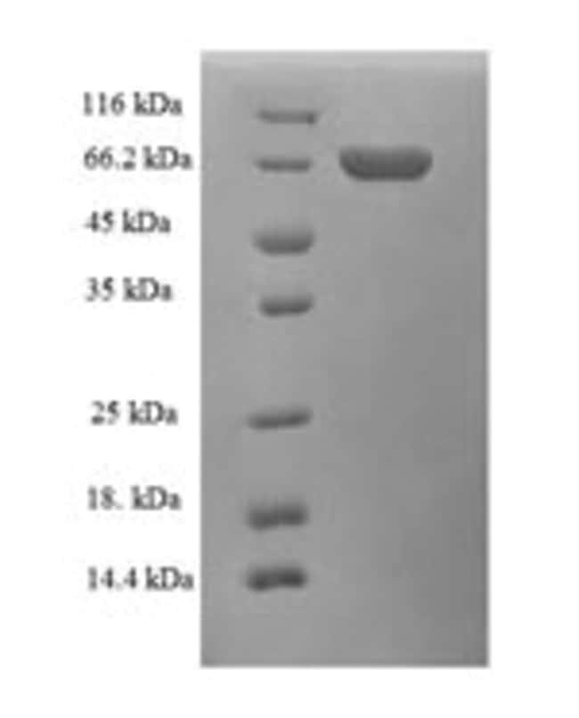 enQuireBio™Recombinant Human Alcohol dehydrogenase class-3 Protein 1mg enQuireBio™Recombinant Human Alcohol dehydrogenase class-3 Protein