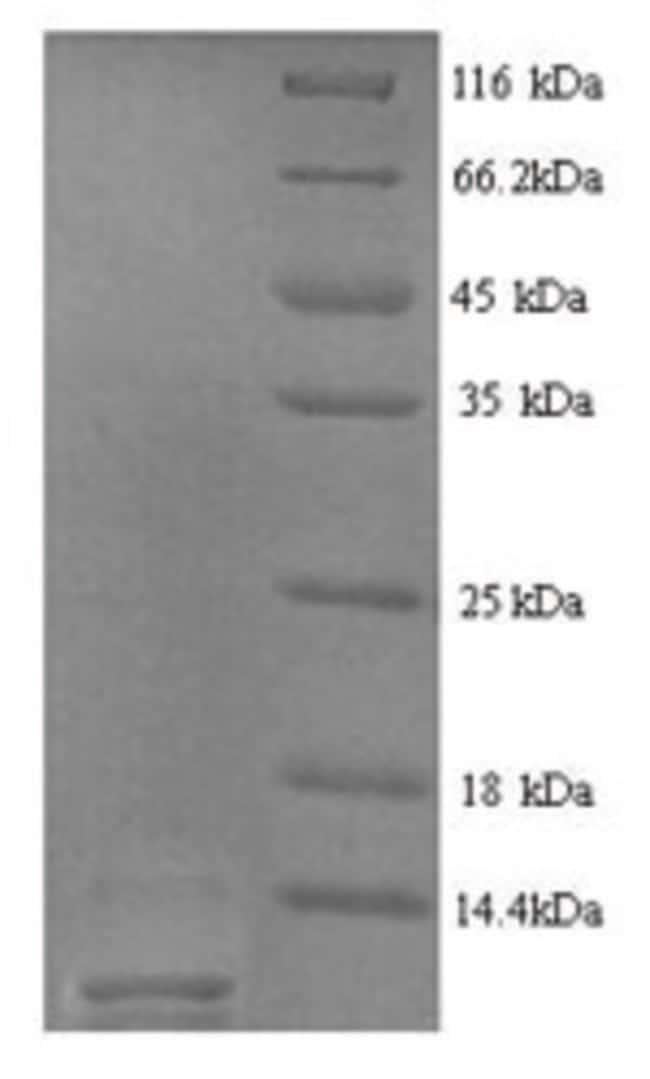 enQuireBio™Recombinant Rat Type-2 angiotensin II receptor Protein 100μg enQuireBio™Recombinant Rat Type-2 angiotensin II receptor Protein