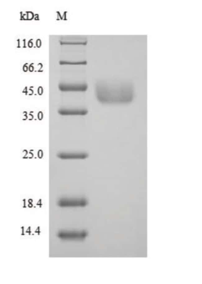 enQuireBio™ Recombinant Mouse Agxt, mitochondrial Protein 1mg enQuireBio™ Recombinant Mouse Agxt, mitochondrial Protein