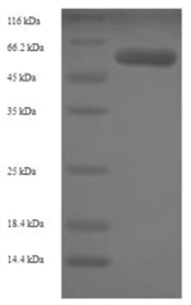 enQuireBio™Recombinant Human Adenosylhomocysteinase Protein 100μg enQuireBio™Recombinant Human Adenosylhomocysteinase Protein