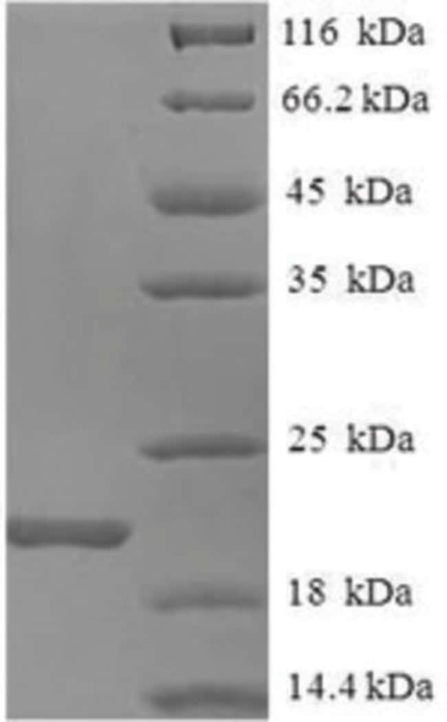 enQuireBio™Recombinant Mouse Allograft inflammatory factor 1 Protein 1mg enQuireBio™Recombinant Mouse Allograft inflammatory factor 1 Protein