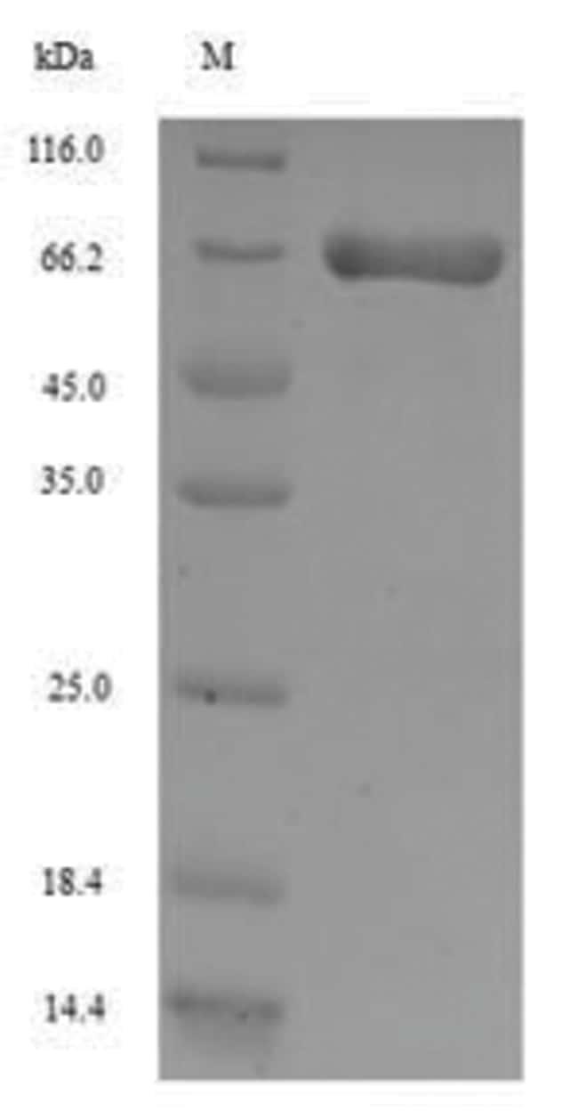 enQuireBio™Recombinant Rat ANPEP / APN / CD13 Protein 100μg enQuireBio™Recombinant Rat ANPEP / APN / CD13 Protein