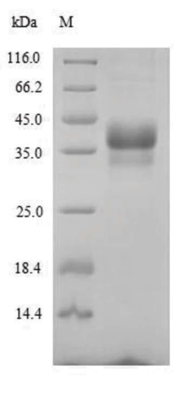 enQuireBio™ Recombinant Mouse ANTXR1 Protein 10μg enQuireBio™ Recombinant Mouse ANTXR1 Protein