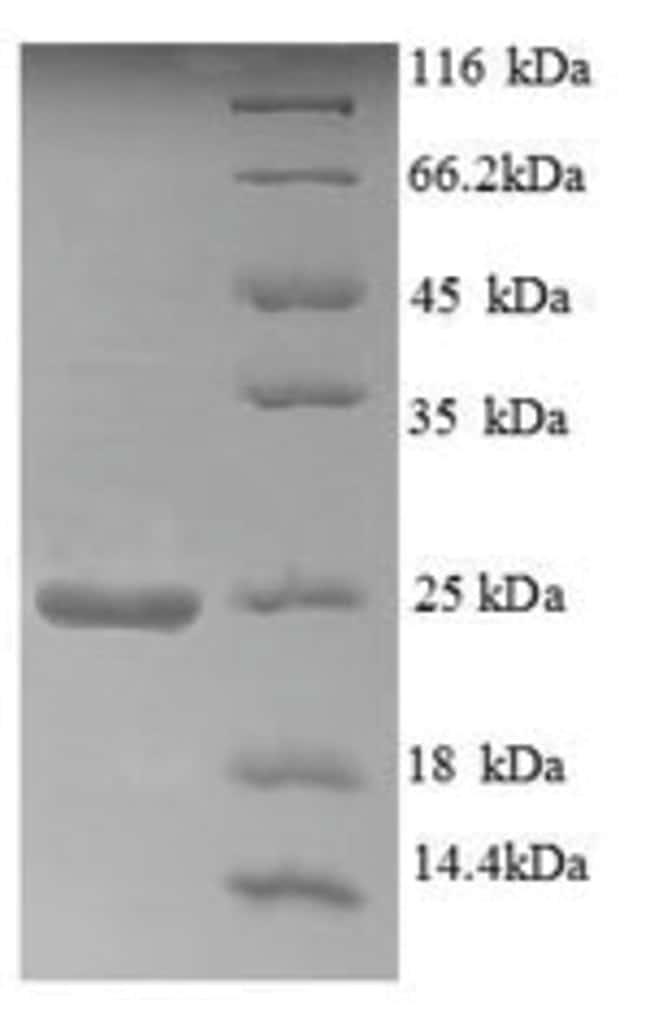 enQuireBio™Recombinant Human Aldehyde oxidase Protein 1mg enQuireBio™Recombinant Human Aldehyde oxidase Protein