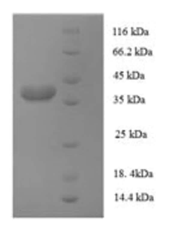 enQuireBio™Recombinant Human AP-1 complex subunit sigma-3 Protein 10μg enQuireBio™Recombinant Human AP-1 complex subunit sigma-3 Protein
