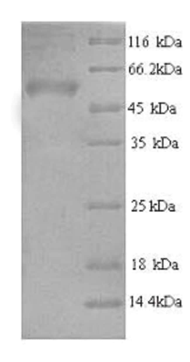 enQuireBio™Recombinant Human AP-2 complex subunit mu Protein 50μg enQuireBio™Recombinant Human AP-2 complex subunit mu Protein