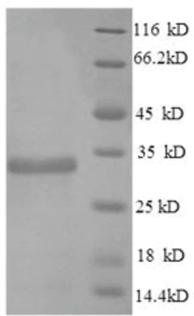 enQuireBio™Recombinant Mouse Apolipoprotein 1 100μg enQuireBio™Recombinant Mouse Apolipoprotein 1
