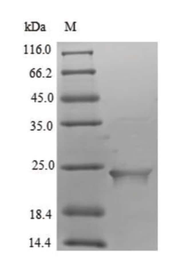 enQuireBio™Recombinant Human Putative inactive neutral ceramidase B Protein 1mg enQuireBio™Recombinant Human Putative inactive neutral ceramidase B Protein