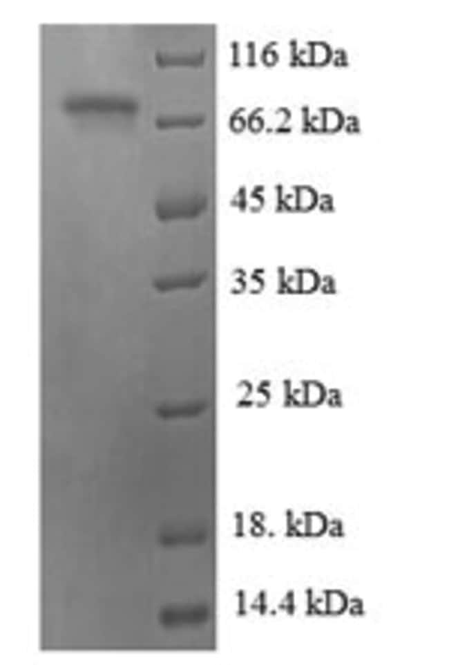enQuireBio™Recombinant Human ATF2 Protein 10μg enQuireBio™Recombinant Human ATF2 Protein