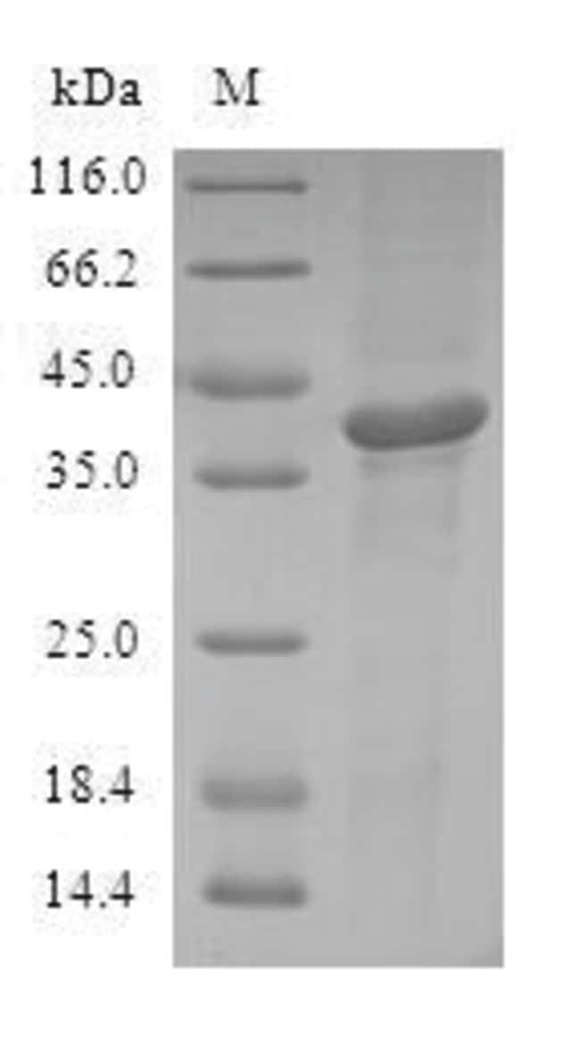enQuireBio™Recombinant Human ATF7 Protein 50μg enQuireBio™Recombinant Human ATF7 Protein