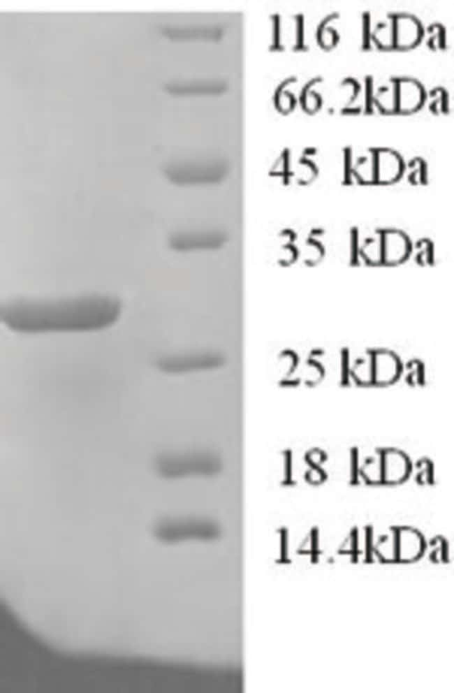 enQuireBio™Recombinant Human Potassium-transporting ATPase subunit beta Protein 100μg enQuireBio™Recombinant Human Potassium-transporting ATPase subunit beta Protein