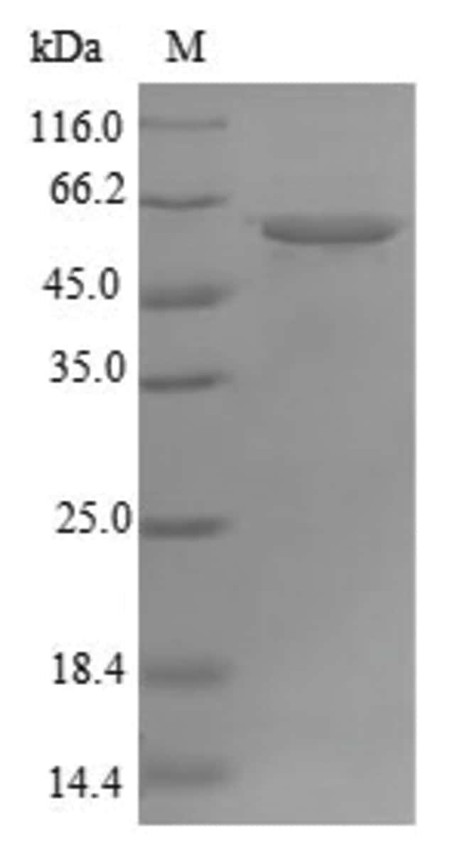 enQuireBio™Recombinant Human ATP synthase subunit alpha, mitochondrial Protein 50μg enQuireBio™Recombinant Human ATP synthase subunit alpha, mitochondrial Protein