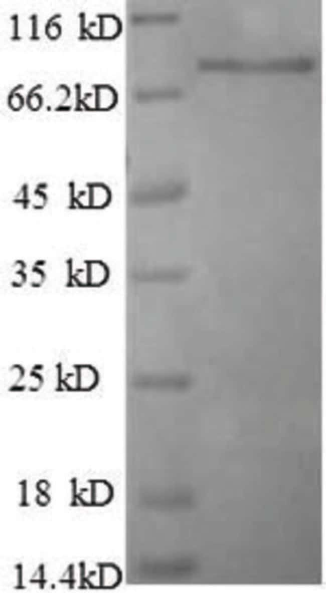 enQuireBio™Recombinant Human Breast carcinoma-amplified sequence 1 Protein 100μg enQuireBio™Recombinant Human Breast carcinoma-amplified sequence 1 Protein
