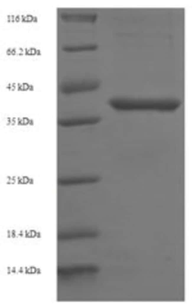 enQuireBio™Recombinant Human BCL10 Protein 1mg enQuireBio™Recombinant Human BCL10 Protein