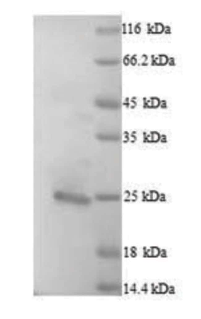 enQuireBio™ Recombinant Human Bcl-2-like protein 11 Protein 10μg enQuireBio™ Recombinant Human Bcl-2-like protein 11 Protein
