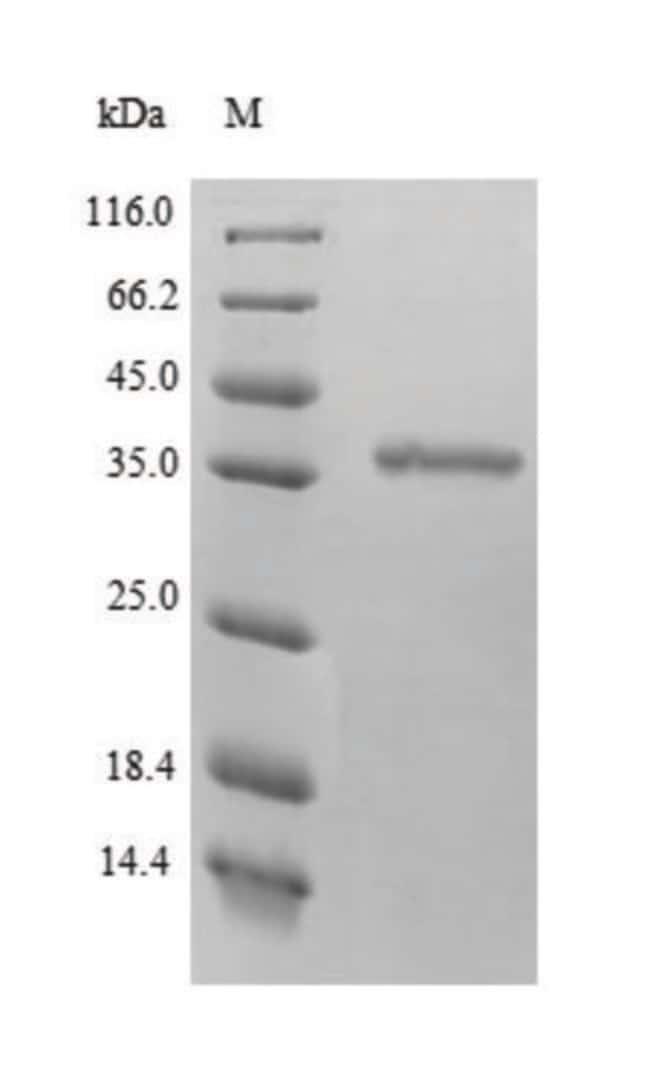 enQuireBio™Recombinant Human BDH1, mitochondrial Protein 1mg enQuireBio™Recombinant Human BDH1, mitochondrial Protein