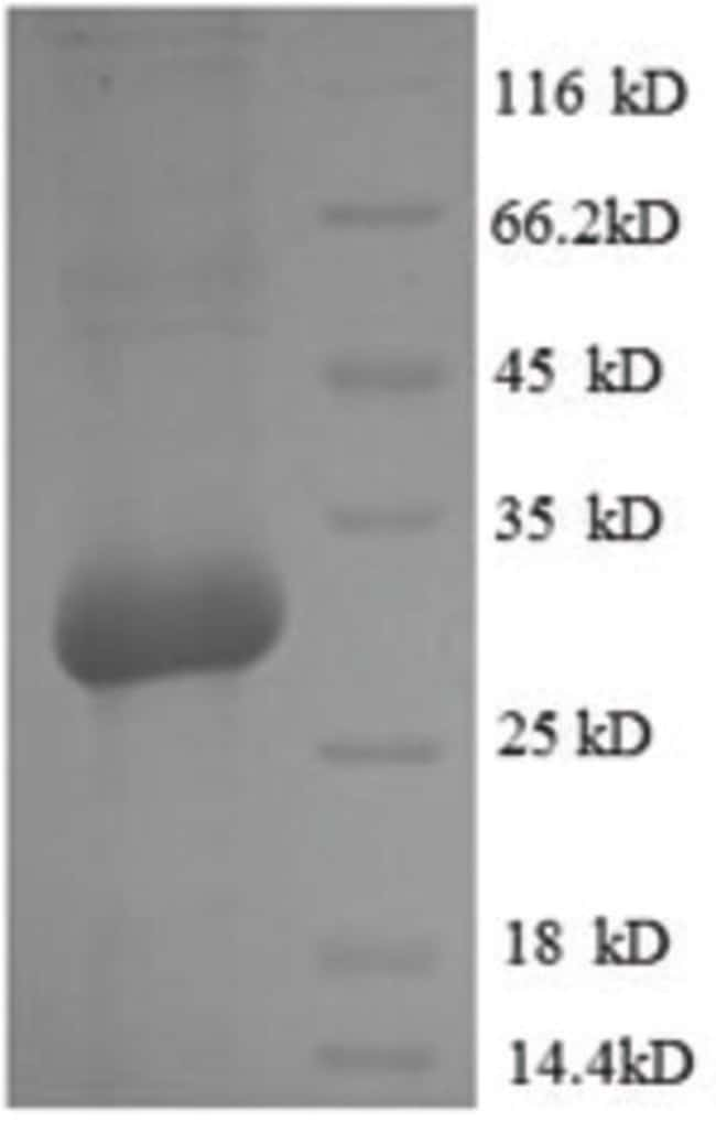 enQuireBio™Recombinant Rat Osteocalcin Protein 100μg enQuireBio™Recombinant Rat Osteocalcin Protein
