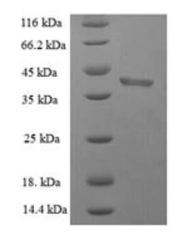 enQuireBio™Recombinant Human BID Protein 100μg enQuireBio™Recombinant Human BID Protein