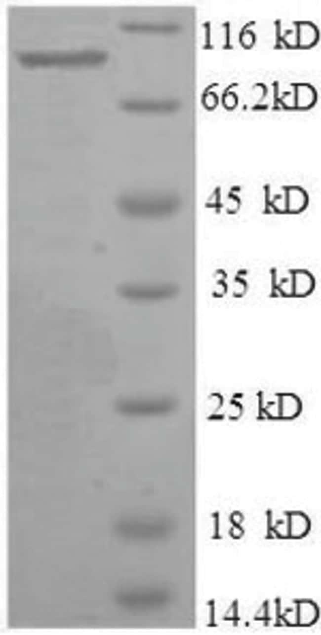 enQuireBio™Recombinant Human Bone morphogenetic protein 1 100μg enQuireBio™Recombinant Human Bone morphogenetic protein 1