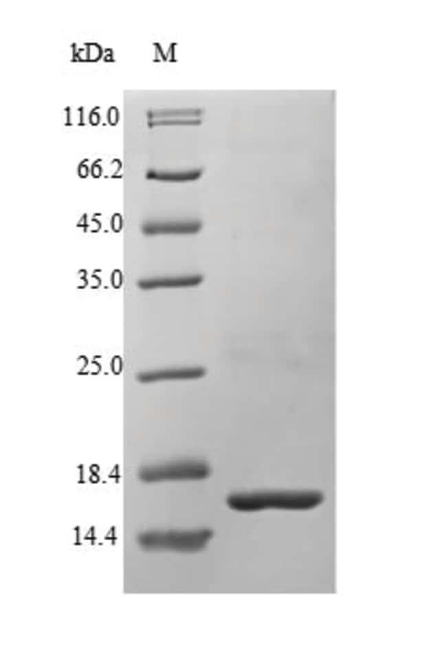 enQuireBio™Recombinant Human Bone morphogenetic protein 1 500μg enQuireBio™Recombinant Human Bone morphogenetic protein 1
