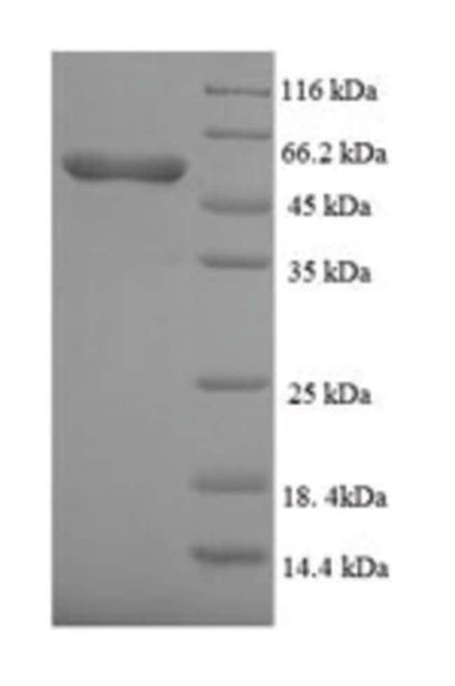 enQuireBio™Recombinant Human ALK-3 / BMPR1A Protein 1mg enQuireBio™Recombinant Human ALK-3 / BMPR1A Protein