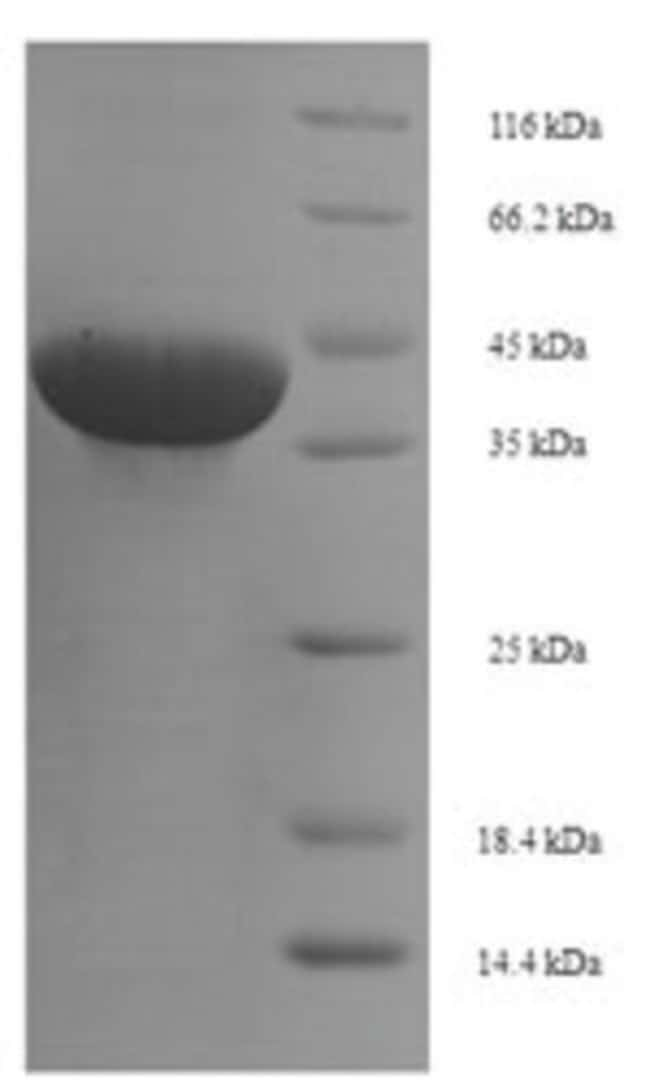 enQuireBio™ Recombinant Human BTN3A1 / CD277 Protein 1mg enQuireBio™ Recombinant Human BTN3A1 / CD277 Protein
