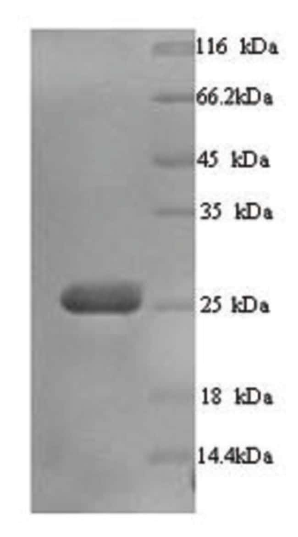 enQuireBio™Recombinant Human BTN3A3 Protein 1mg enQuireBio™Recombinant Human BTN3A3 Protein