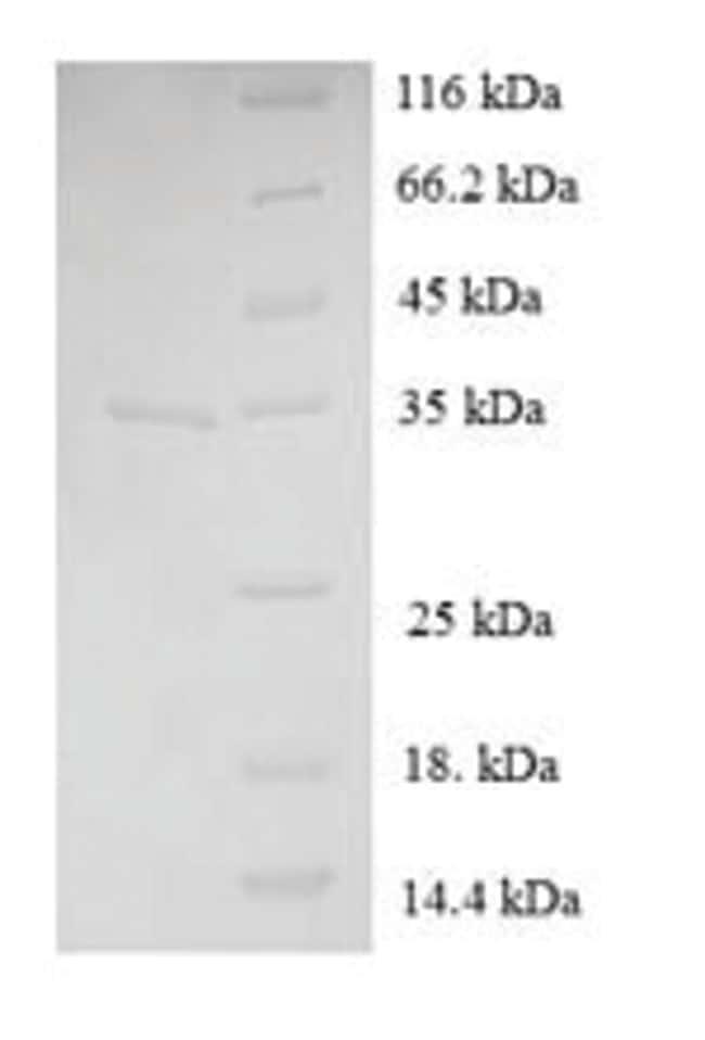enQuireBio™Recombinant Human Immortalization up-regulated Protein 100μg enQuireBio™Recombinant Human Immortalization up-regulated Protein