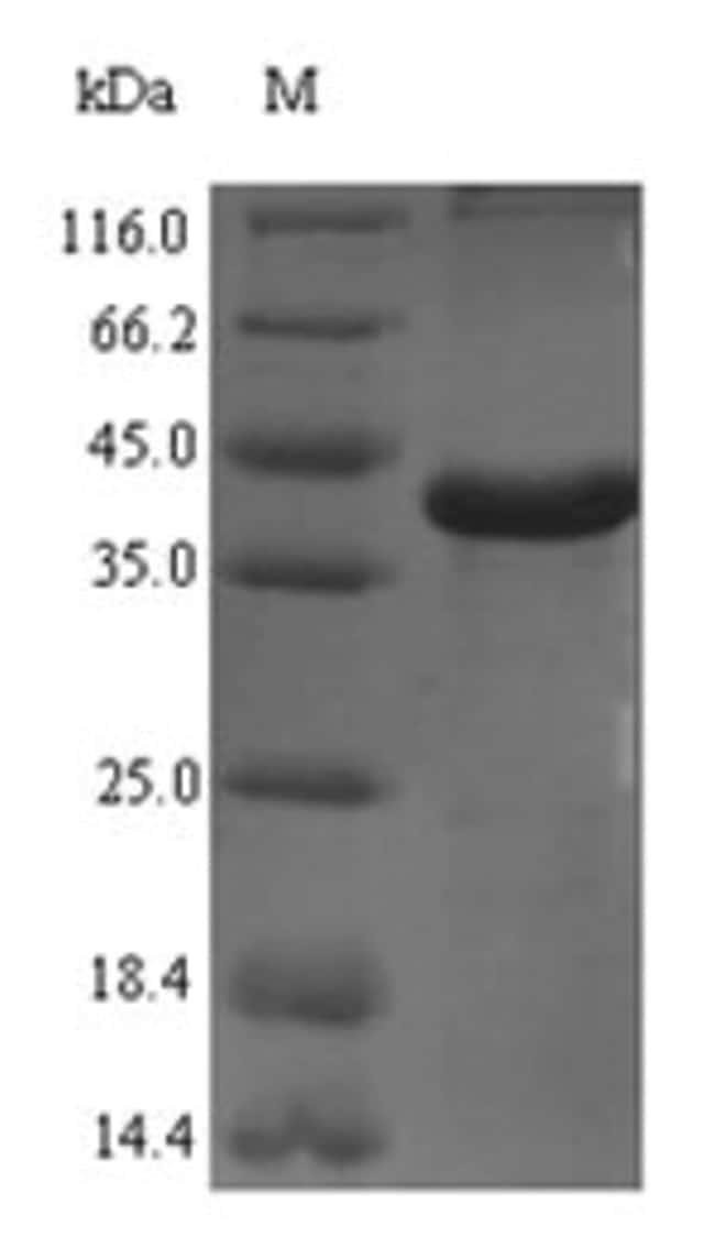 enQuireBio™Recombinant Rat Complement C1q subcomponent subunit A Protein 100μg enQuireBio™Recombinant Rat Complement C1q subcomponent subunit A Protein