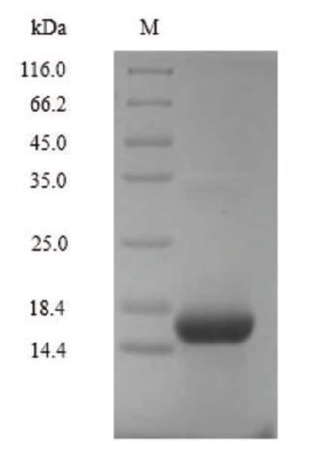 enQuireBio™Recombinant Human C5a / Complement 5a Protein 100μg enQuireBio™Recombinant Human C5a / Complement 5a Protein
