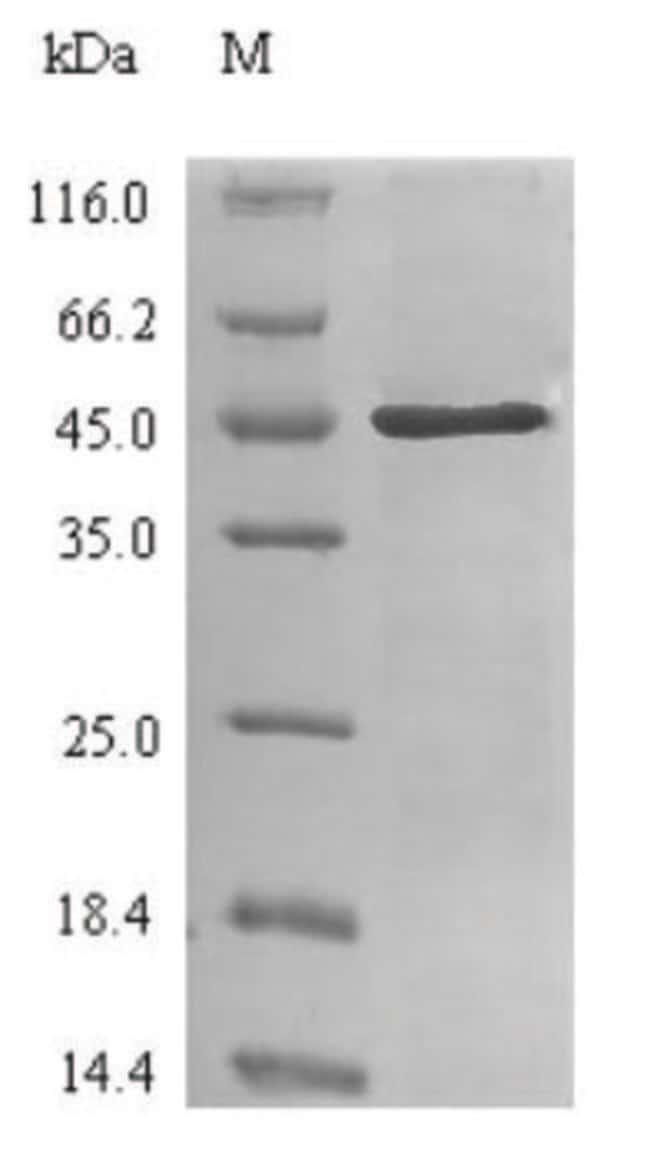 enQuireBio™Recombinant Human Carbonic Anhydrase II / CA2 Protein 1mg enQuireBio™Recombinant Human Carbonic Anhydrase II / CA2 Protein