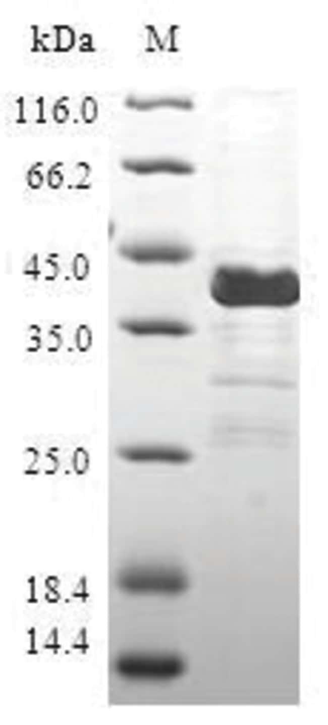 enQuireBio™Recombinant Human CALCB / CGPR / Calcitonin 2 Protein 1mg enQuireBio™Recombinant Human CALCB / CGPR / Calcitonin 2 Protein