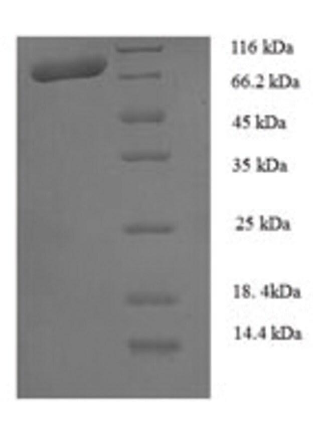 enQuireBio™Recombinant Human Calpain-1 catalytic subunit Protein 100μg enQuireBio™Recombinant Human Calpain-1 catalytic subunit Protein