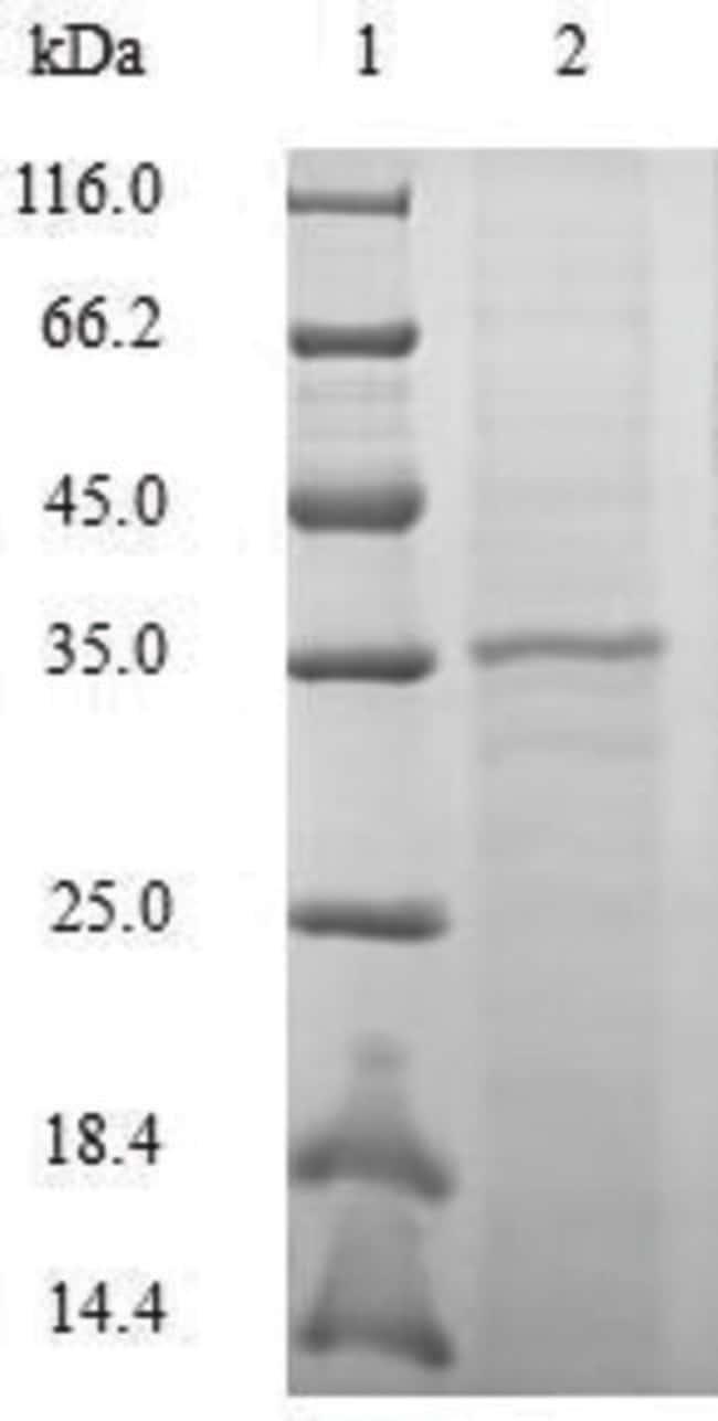 enQuireBio™Recombinant Macaque CCL20 / MIP-3 alpha Protein 1mg enQuireBio™Recombinant Macaque CCL20 / MIP-3 alpha Protein