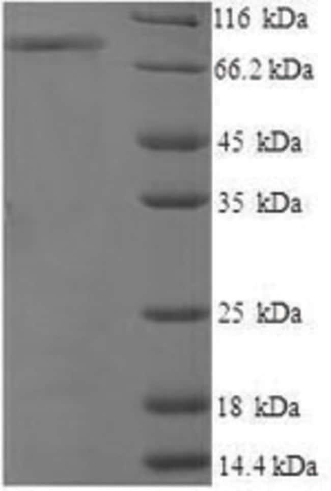 enQuireBio™Recombinant Human CD44 / HCAM Protein 100μg enQuireBio™Recombinant Human CD44 / HCAM Protein