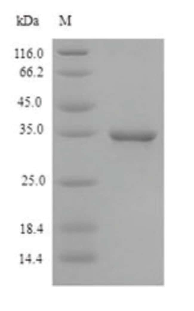 enQuireBio™ Recombinant Guinea Pig CD46 Protein 10μg enQuireBio™ Recombinant Guinea Pig CD46 Protein