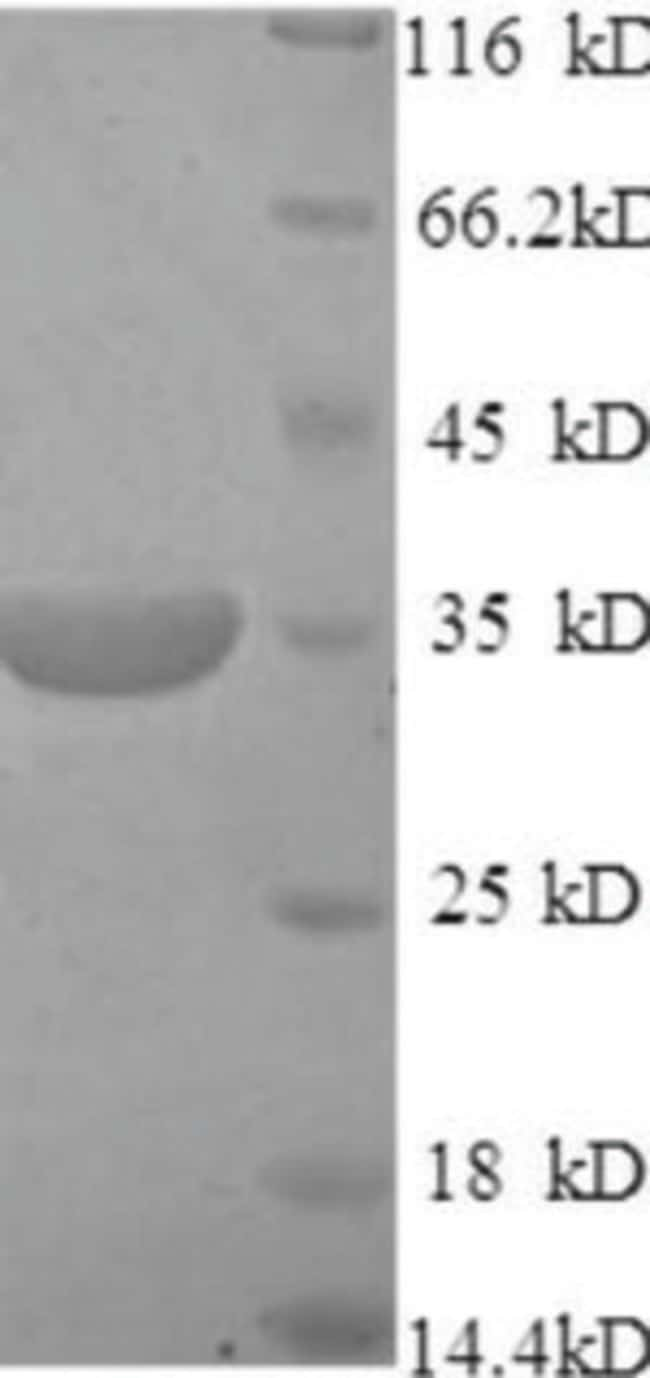 enQuireBio™Recombinant Mouse CD46 Protein 50μg enQuireBio™Recombinant Mouse CD46 Protein