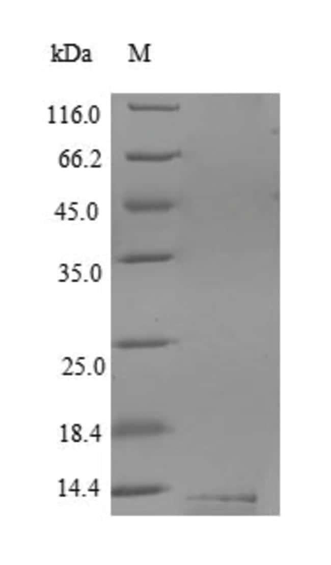 enQuireBio™Recombinant Human CD59 / CD59A / MAC-IP Protein 1mg enQuireBio™Recombinant Human CD59 / CD59A / MAC-IP Protein